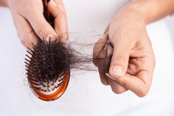 How I Treat Hair Loss
